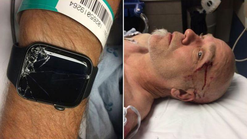 Το Apple Watch έσωσε τη ζωή ποδηλάτη!